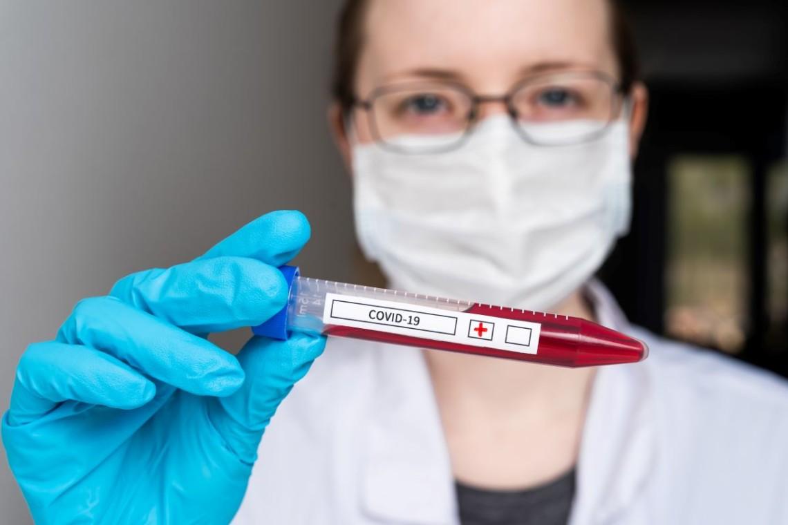 Коронавірус у світі - статистика » Слово і Діло