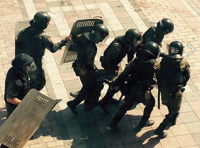 У ході зіткнень під Верховною Радою між мітингувальниками та силовиками, які почалися після голосування за зміни до Конституції України, постраждали декілька бійців Національної гвардії.